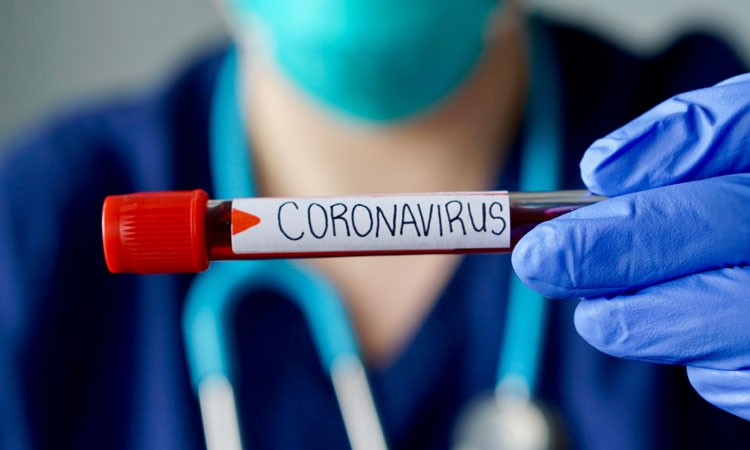 Coronavirus Dubrovnik: Two new confirmed cases – 64 COVID-19 cases in Dubrovnik – Neretva County