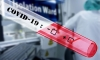 Coronavirus Croatia – 34 new cases of Covid-19 in Croatia – four fatalities